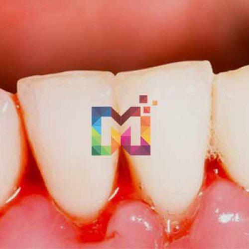 Diş Kanaması ve Oruç Bozulması Hakkında